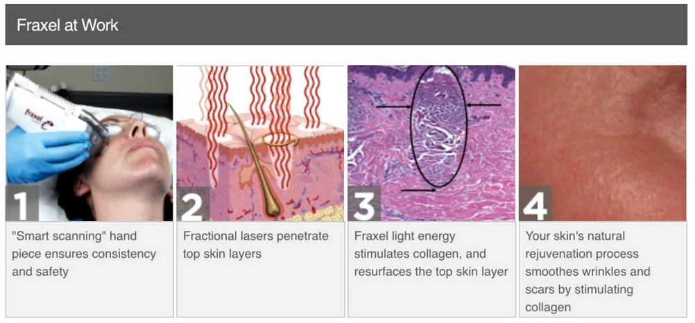 Dr. Robert G. Anderson 3 Skin Treatments to Repair And Reverse Sun Damage