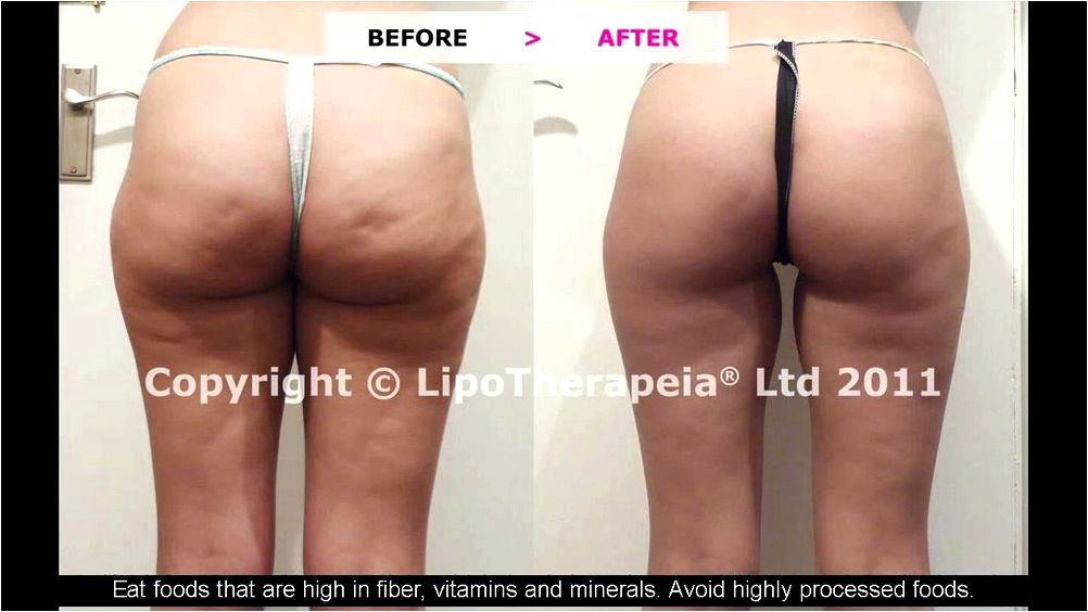 9 Cellulite treatments that do not eliminate cellulite goal, however
