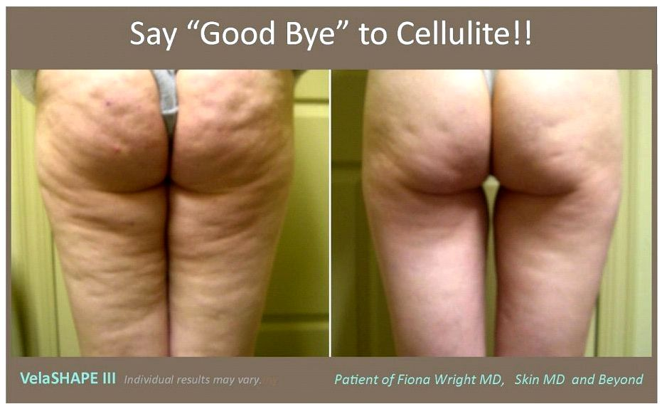 9 Cellulite treatments that do not eliminate cellulite of excess fat to interrupt
