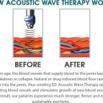 Acoustic wave therapy cellulite treatment tampa bay st petersburg fl