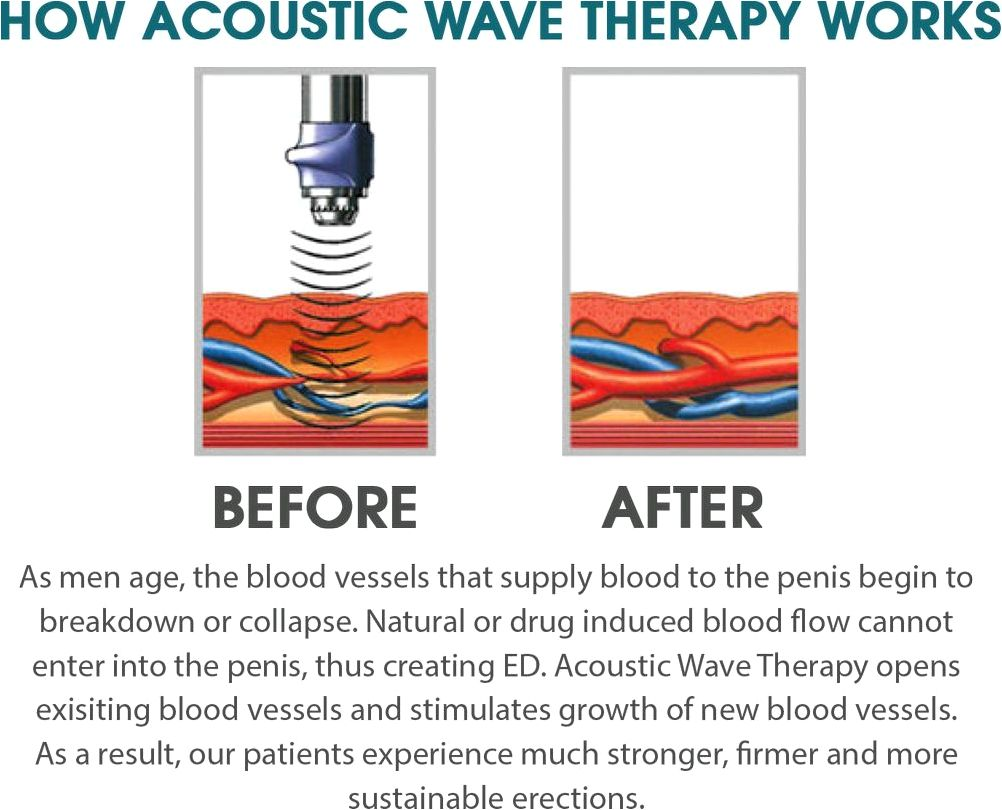 Acoustic wave therapy cellulite treatment tampa bay st petersburg fl accessible as