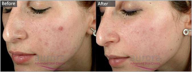 Advanced facial peels polyphenols, and Co