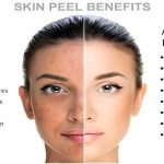 Advantages of a glycolic facial peel