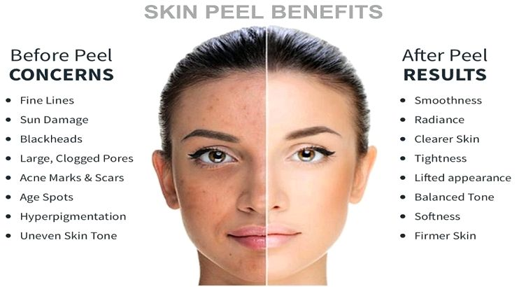 Advantages of a glycolic facial peel to profit the