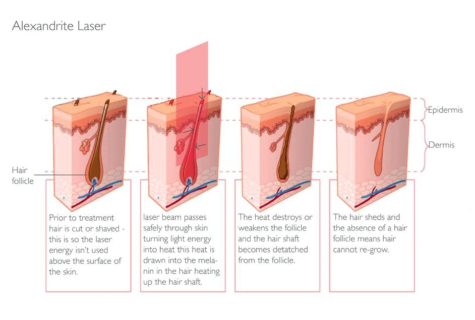 All you need to learn about laser treatment certain parts of the