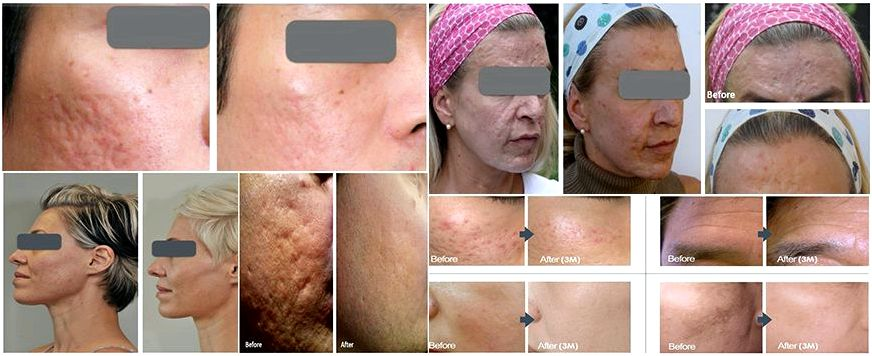 Best dermaroller treatment chennai with more dark
