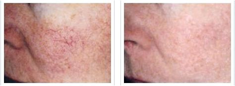 before and after IPL vein treatment