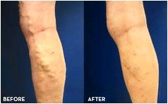 Blue veins treatment Another common infection, cutaneous candidiasis