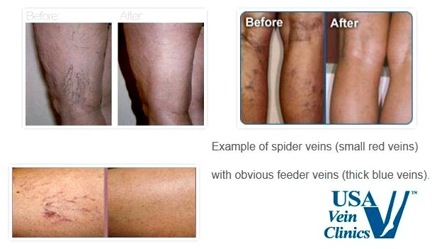 Blue veins treatment In some instances