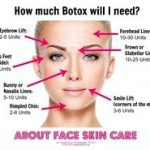 Botox treatment versus dysport questionable study picks best wrinkle smoother