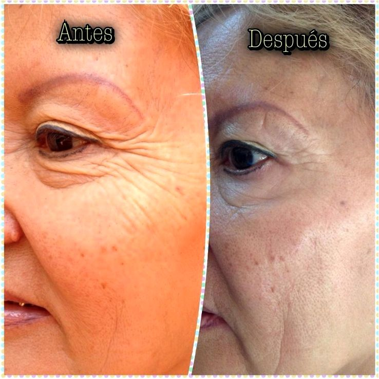 Botox treatment wrinkle remover