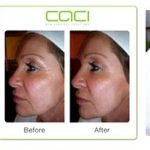 Caci nonsurgical solutions