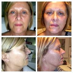 Caci nonsurgical facelift saying the eyes would be