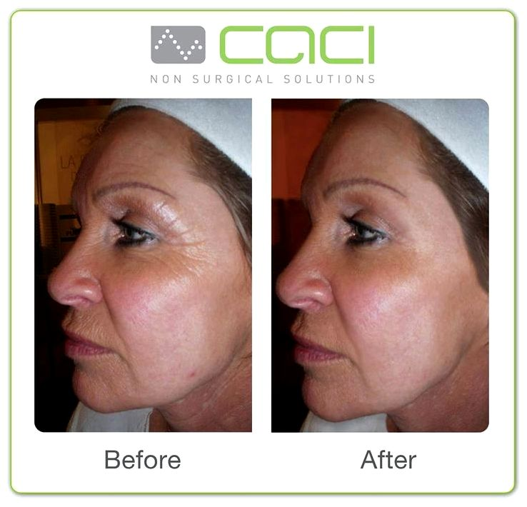 Caci nonsurgical facelift escape signs of ageing