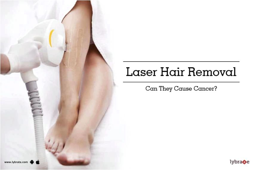 Can laser treatment cause cancer? laser treatment