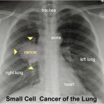 Cancer of the lung 101