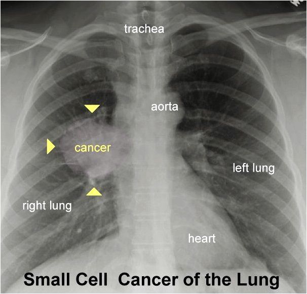 Cancer of the lung 101 surgery, patients