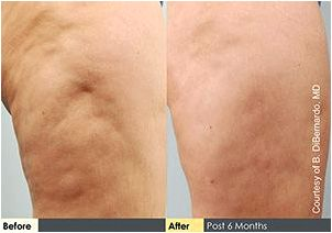 Cellulite Treatment in Honolulu  Patient Photos