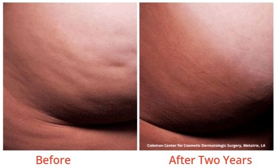 Cellulite treatment minneapolis first practice