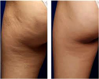 Cellulite treatment philadelphia pa Falcone takes great