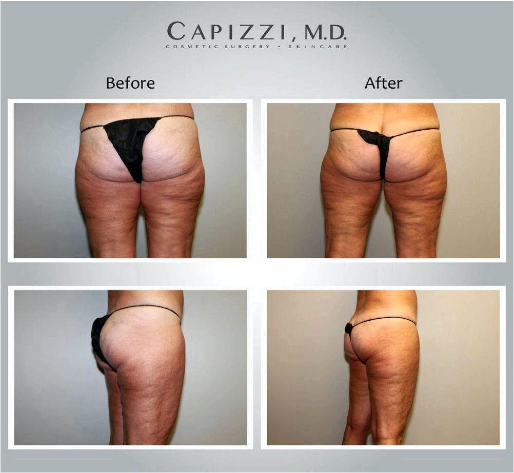 Cellulite treatment philadelphia pa enlarged fats