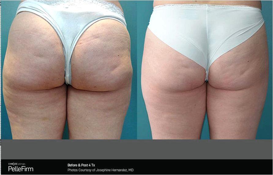 Cellulite treatment philadelphia pa | Proskin Clinics
