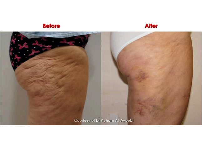 Cellulite treatment with cellulaze treatment Please call 801-595