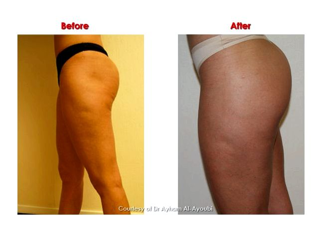 Cellulite treatment with cellulaze treatment As an  Food and