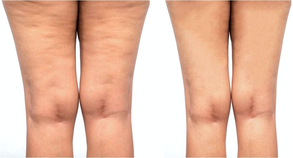 Cellulite treatment with cellulaze treatment Cellulite is among