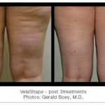 Cellulite treatments in gainesville fl