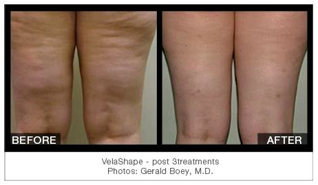 Cellulite treatments in gainesville fl treatment to avoid health
