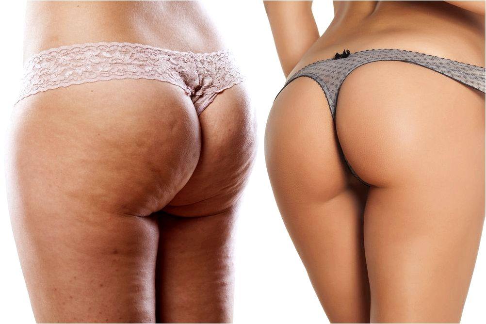 Cellulite treatments scottsdale az couple of hrs publish