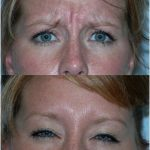 Wrinkle reduction (volume correction) olmsted clinic rochester mn