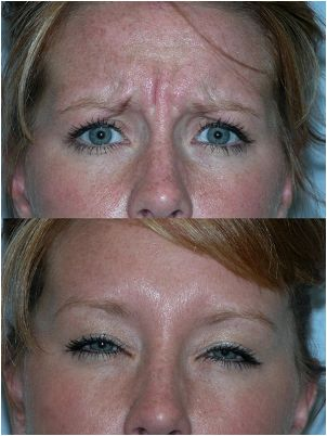 Botox before/after image