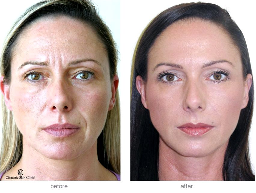 Cosmetic dermal fillers by skin care experts in dallas Because hyaluronic acidity is really