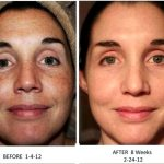 Dark spots sundamage melasma