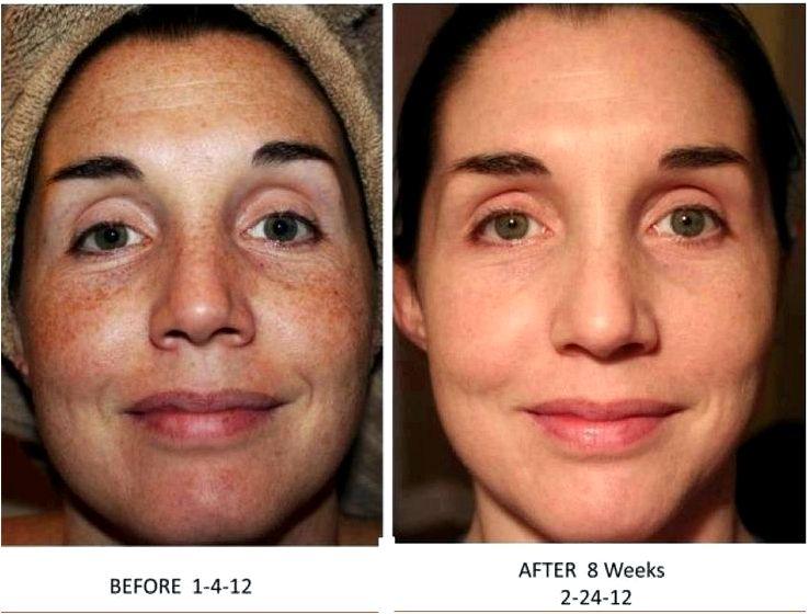 Dark spots sundamage melasma to hyperpigmentation, especially should they