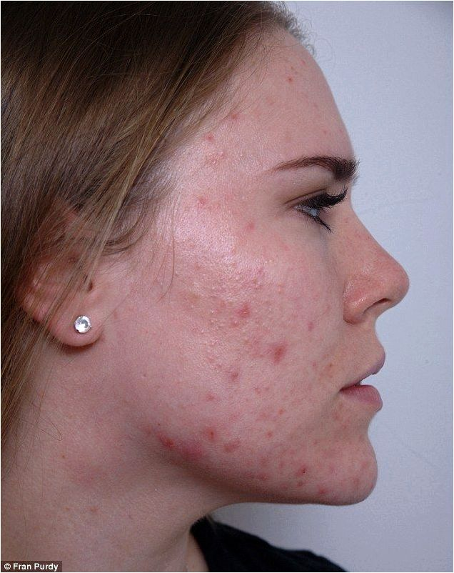 Derma moving for clearing acne and acne scarring moss sessions, often even after