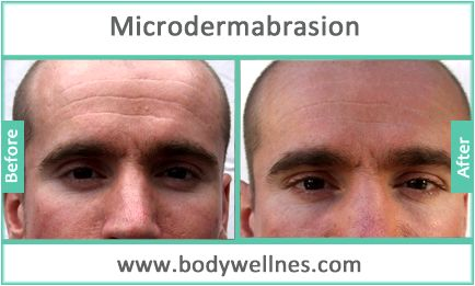 Dermabrasion & microdermabrasion Dermabrasion          scrapes away the