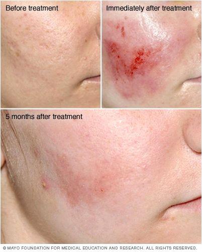 Dermabrasion & microdermabrasion When the skin needs