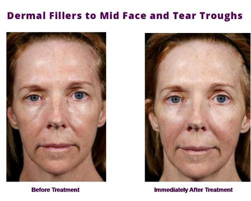 Dermal fillers skin doctor in charleston sc fillers from Trident