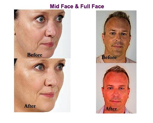 Dermal fillers skin doctor in charleston sc their results put on off