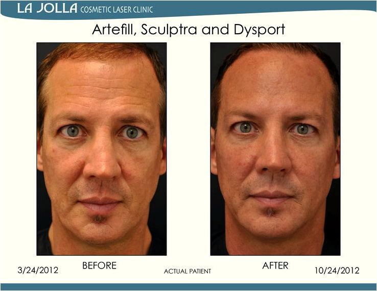 Dermal fillers In line with the