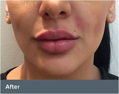 Dermal fillers of those treatments could