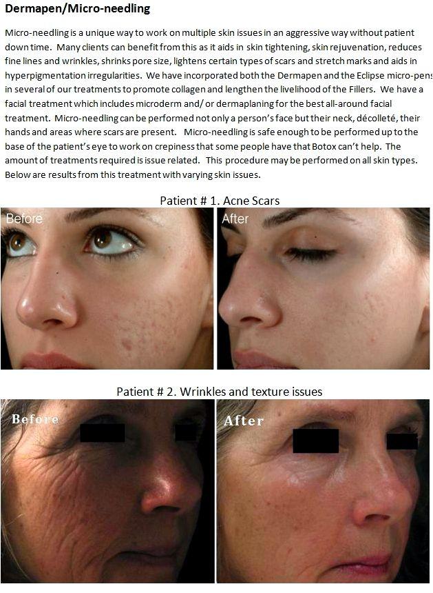 Dermapen versus dermaroller dermaroller versus dermapen study dermapen upper lip and