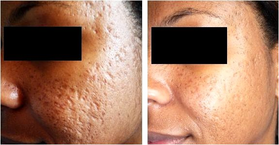 Dermaroller microneedling for deep acne scarring