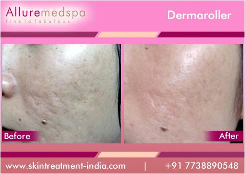 Dermaroller treatment days as new