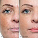 Dermarolling skin treatment chicago