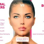 Do you know the advantages of dermal filler treatments?