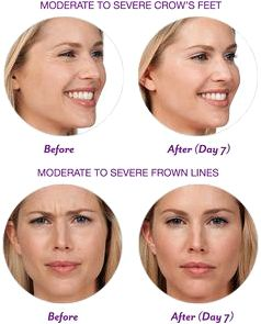 Dysport injections can provide patients smooth wrinklefree skin the cosmetic surgery center neuromuscular agent that blocks